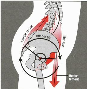 fixing anterior pelvic tilt