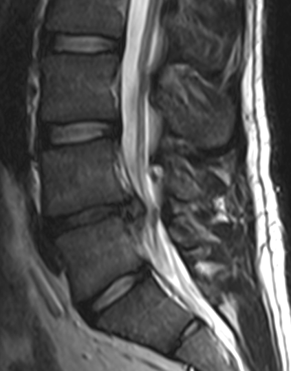 Can you see the herniated disc? Bonus Question: Can you tell me between which two vertebra it is?